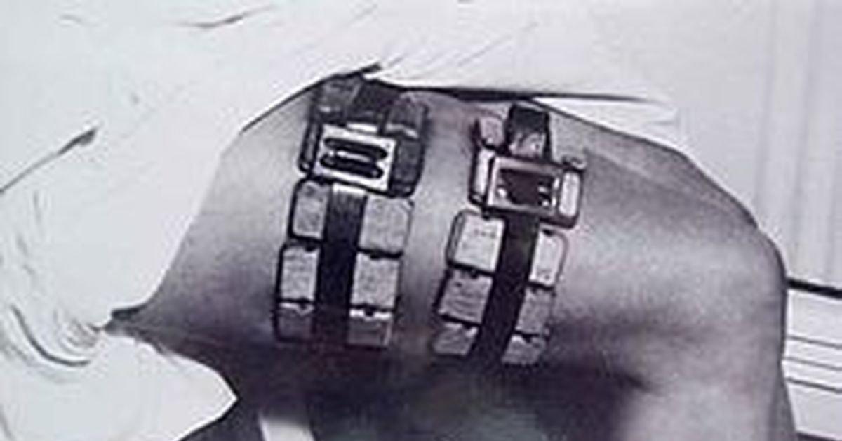 Рудольф Вайгль: творець вакцини проти висипного тифу, що врятував мільйони, фото-6