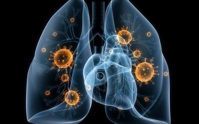 Туберкульоз / Фото: з вільних джерел