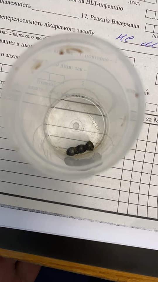 """У кишківнику дитини виявили магнітики, Фото: Facebook/""""Охматдит"""""""