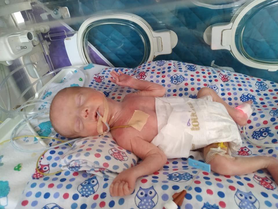 Медики виходили передчасно народжених хлопчиків, Фото: дитяча лікарня на Орлика