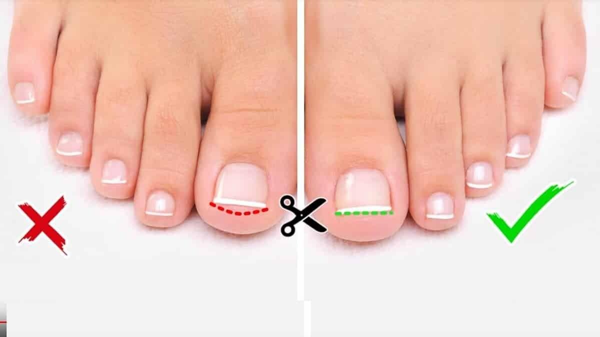 форма підстрігання нігтів на стопах